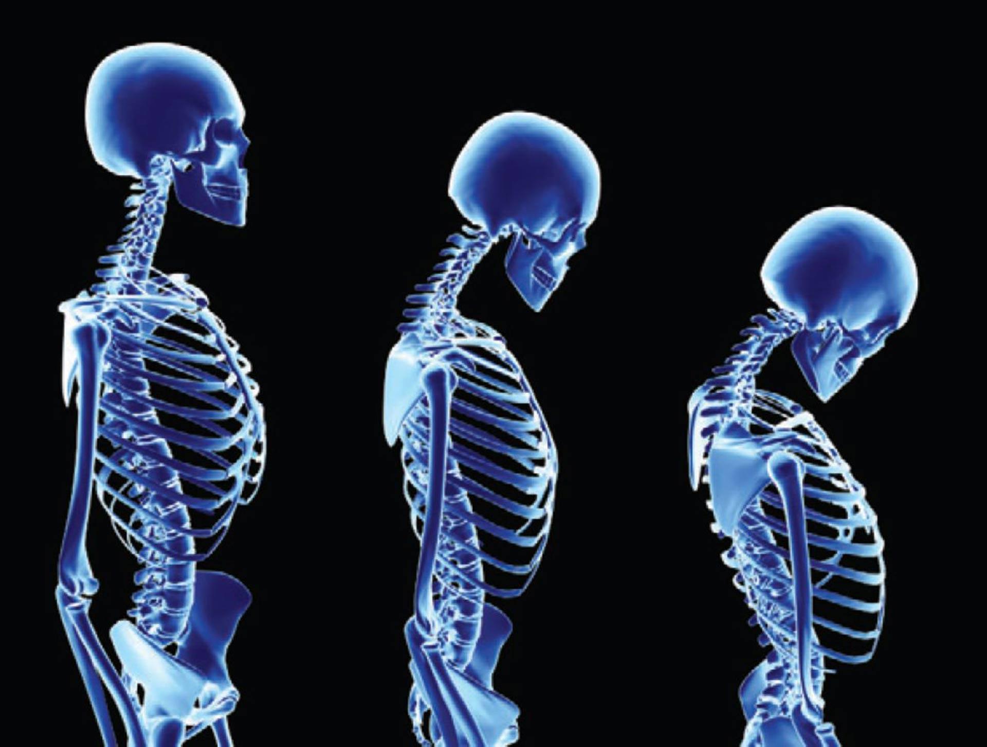 Symptoms-of-Osteoporosis
