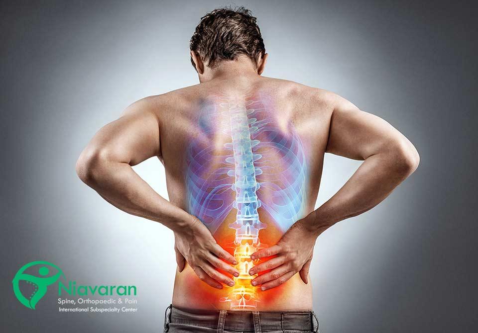 انواع کمر درد